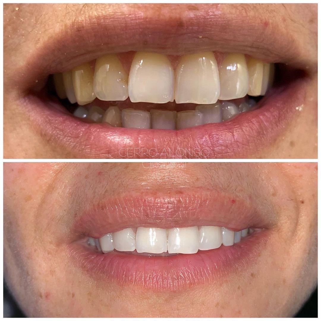 antes y después blanquemiento dental